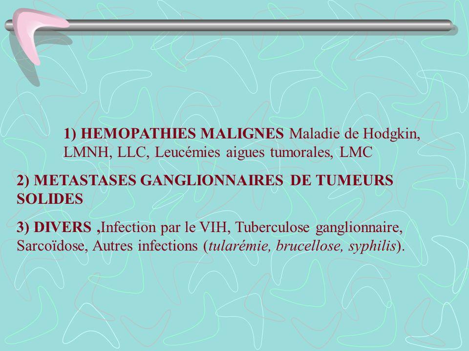 1) HEMOPATHIES MALIGNES Maladie de Hodgkin, LMNH, LLC, Leucémies aigues tumorales, LMC 2) METASTASES GANGLIONNAIRES DE TUMEURS SOLIDES 3) DIVERS,Infec