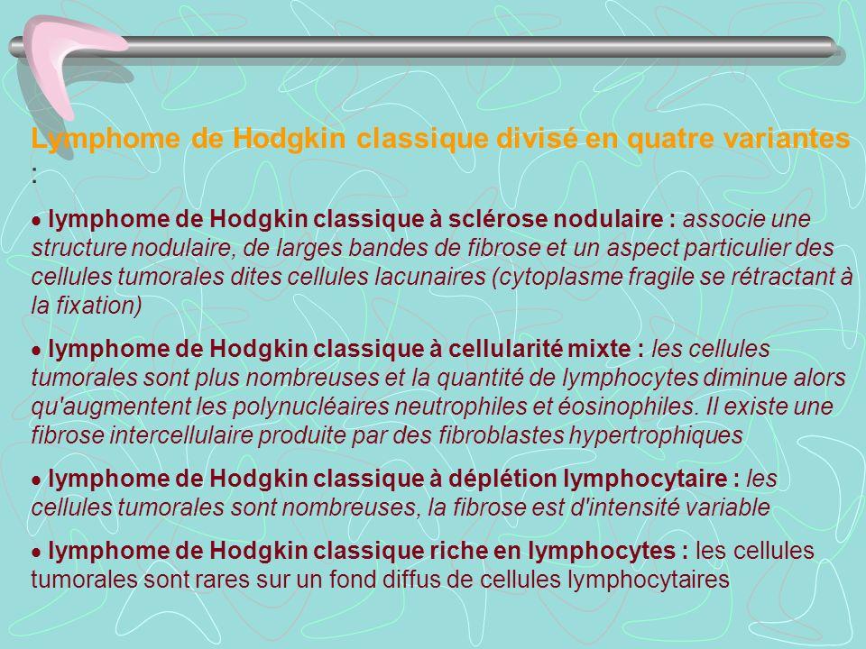 Lymphome de Hodgkin classique divisé en quatre variantes : lymphome de Hodgkin classique à sclérose nodulaire : associe une structure nodulaire, de la