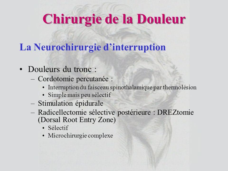 Chirurgie de la Douleur La Neurochirurgie dinterruption Douleurs du tronc : –Cordotomie percutanée : Interruption du faisceau spinothalamique par ther