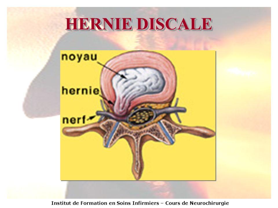 Institut de Formation en Soins Infirmiers – Cours de Neurochirurgie HERNIE DISCALE