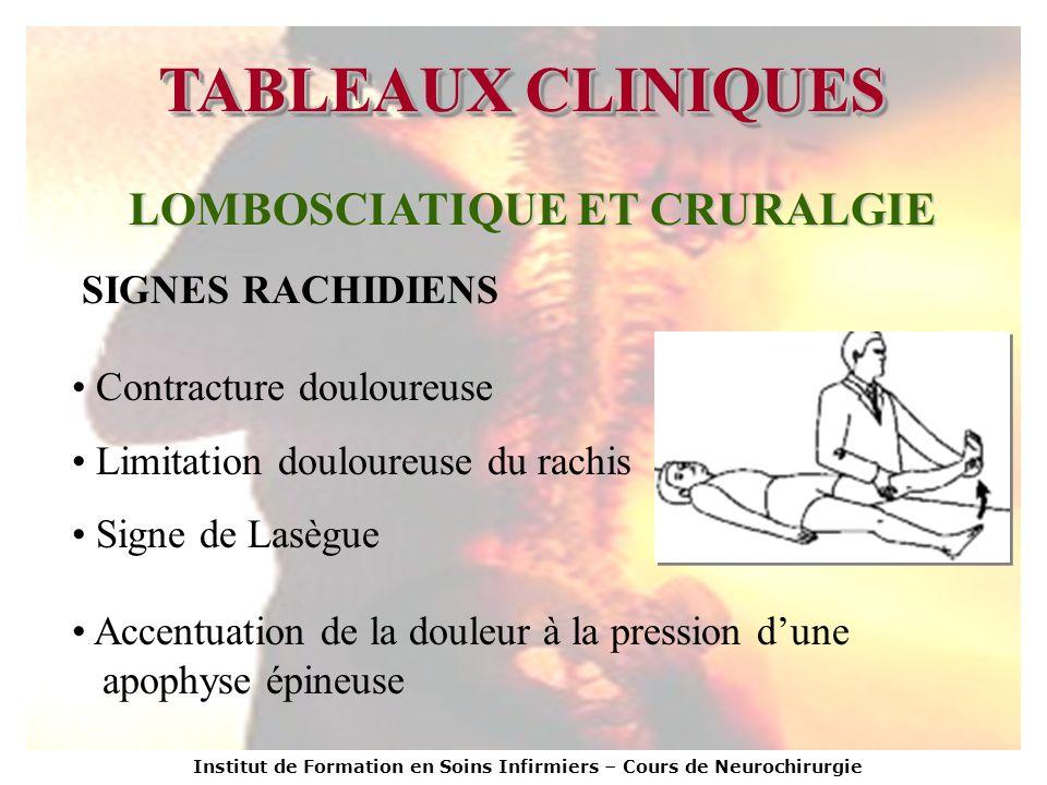 Institut de Formation en Soins Infirmiers – Cours de Neurochirurgie TABLEAUX CLINIQUES LOMBOSCIATIQUE ET CRURALGIE SIGNES RACHIDIENS Contracture doulo