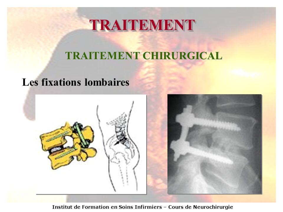 Institut de Formation en Soins Infirmiers – Cours de Neurochirurgie TRAITEMENTTRAITEMENT TRAITEMENT CHIRURGICAL Les fixations lombaires