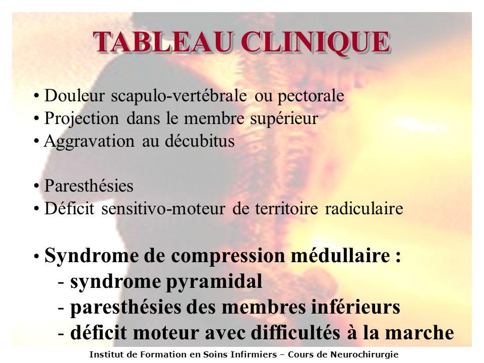 TABLEAU CLINIQUE Douleur scapulo-vertébrale ou pectorale Projection dans le membre supérieur Aggravation au décubitus Paresthésies Déficit sensitivo-m