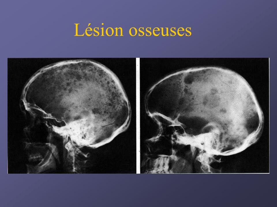 Lésion osseuses