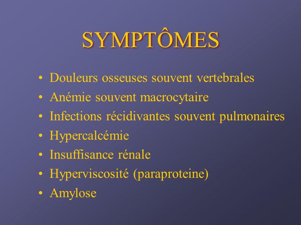 SYMPTÔMES Douleurs osseuses souvent vertebrales Anémie souvent macrocytaire Infections récidivantes souvent pulmonaires Hypercalcémie Insuffisance rén