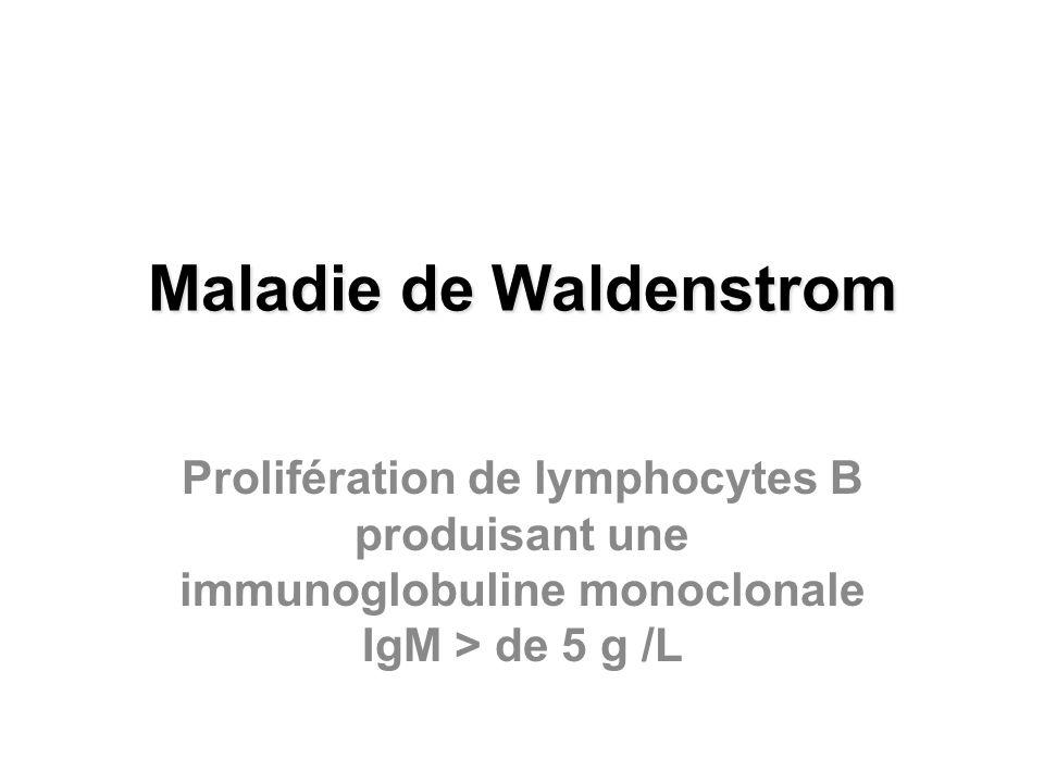 Maladie de Waldenstrom Prolifération de lymphocytes B produisant une immunoglobuline monoclonale IgM > de 5 g /L