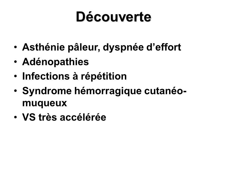 Découverte Asthénie pâleur, dyspnée deffort Adénopathies Infections à répétition Syndrome hémorragique cutanéo- muqueux VS très accélérée