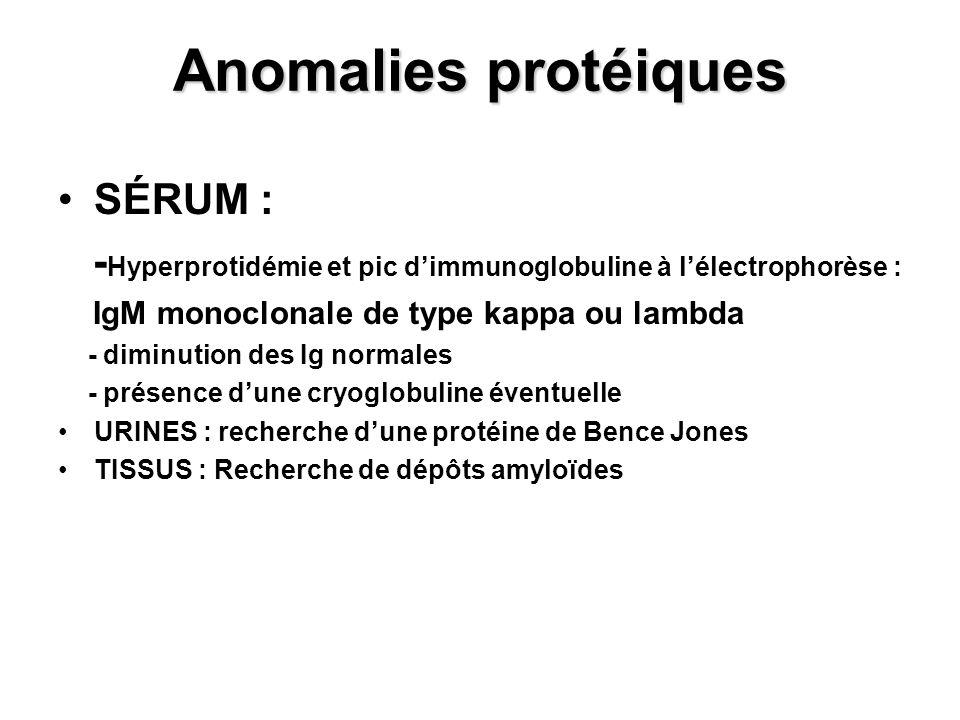 Anomalies protéiques SÉRUM : - Hyperprotidémie et pic dimmunoglobuline à lélectrophorèse : IgM monoclonale de type kappa ou lambda - diminution des Ig