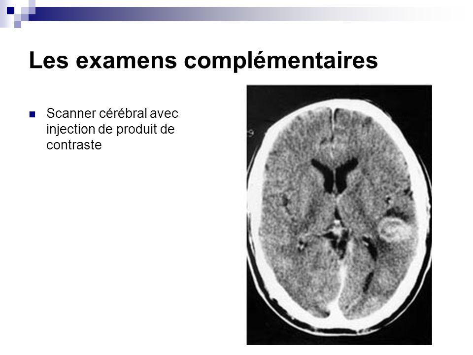 Les examens complémentaires Scanner cérébral avec injection de produit de contraste