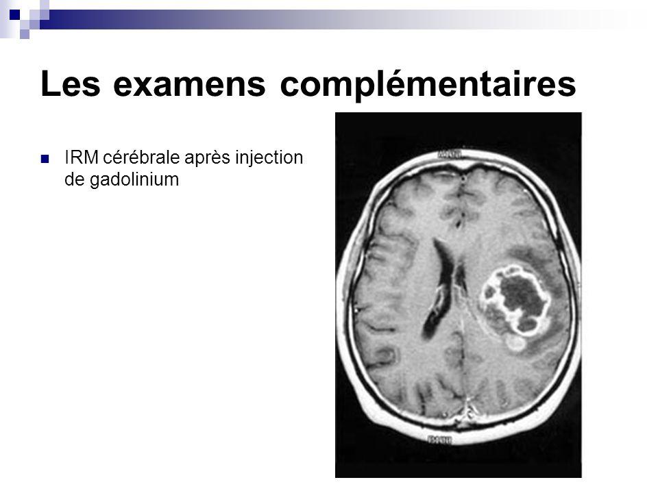 Les examens complémentaires IRM cérébrale après injection de gadolinium