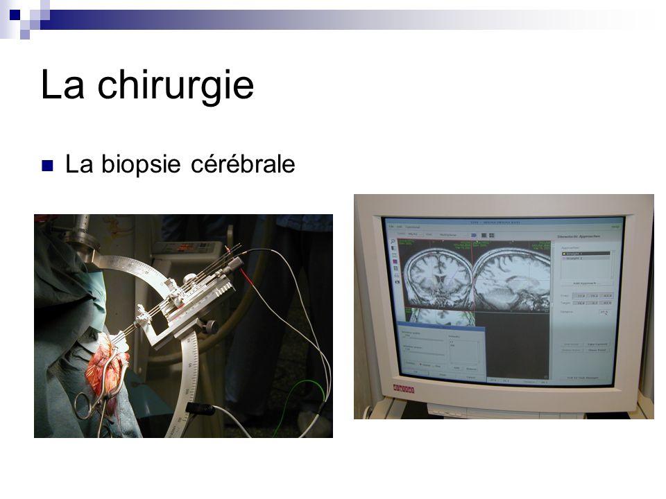 La chirurgie La biopsie cérébrale