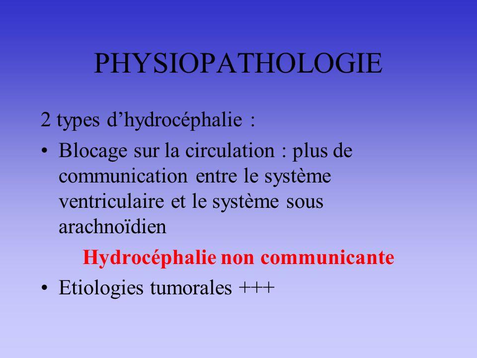 PHYSIOPATHOLOGIE 2 types dhydrocéphalie : Blocage sur la circulation : plus de communication entre le système ventriculaire et le système sous arachnoïdien Hydrocéphalie non communicante Etiologies tumorales +++