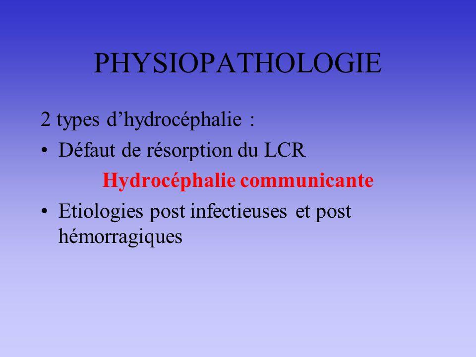 PHYSIOPATHOLOGIE 2 types dhydrocéphalie : Défaut de résorption du LCR Hydrocéphalie communicante Etiologies post infectieuses et post hémorragiques