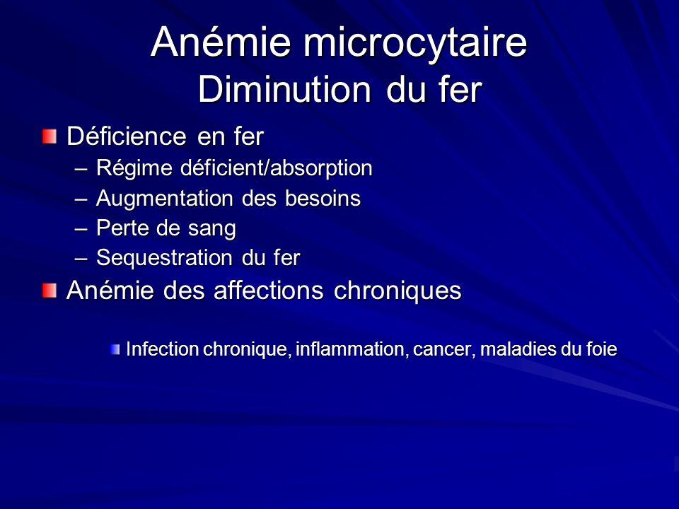 Anémie microcytaire VGM <80 Diminution du fer Diminution de la synthèse de lhéme Diminution de la production de globine