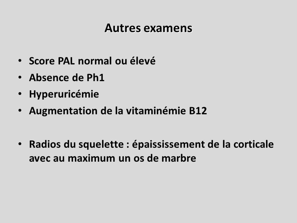 Autres examens Score PAL normal ou élevé Absence de Ph1 Hyperuricémie Augmentation de la vitaminémie B12 Radios du squelette : épaississement de la co
