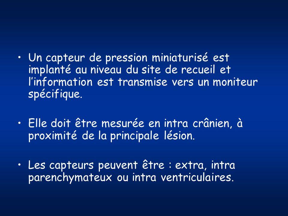 Un capteur de pression miniaturisé est implanté au niveau du site de recueil et linformation est transmise vers un moniteur spécifique. Elle doit être