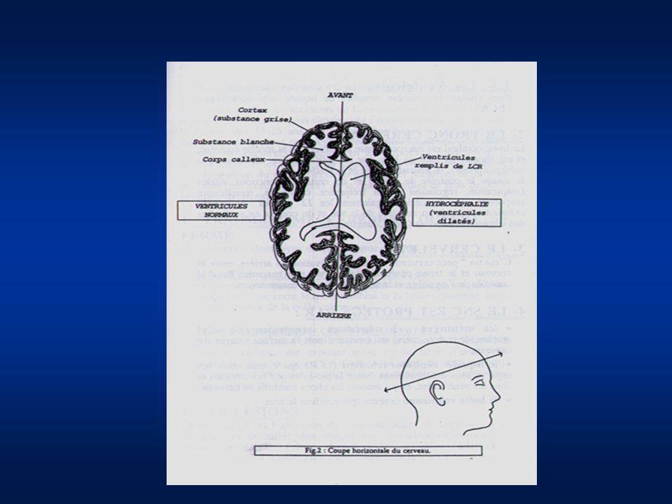 DEFINITION TC GRAVE = Glasgow < 9 après correction des fonctions vitales et sans ouverture des yeux Critères dappel au réanimateur : TOUT TC PRESENTANT 1 DES CRITERES SUIVANT : - plaie crânio-cérébrale, crise convulsive, déficit focalisé - Glasgow < 13 y compris si prise dalcool, ou psychotropes - Perte de connaissance initiale en association avec une lésion à risque hémorragique / hypoxique ou de choc extrêmement violent (mort dans laccident)