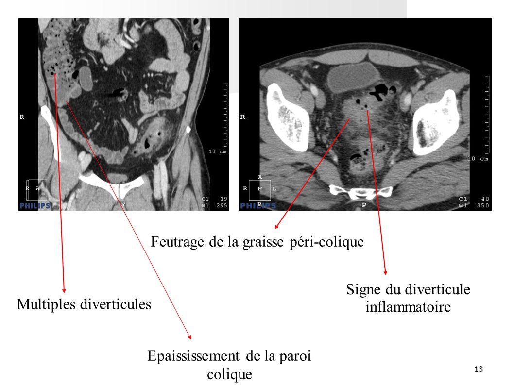 13 Feutrage de la graisse péri-colique Multiples diverticules Signe du diverticule inflammatoire Epaississement de la paroi colique