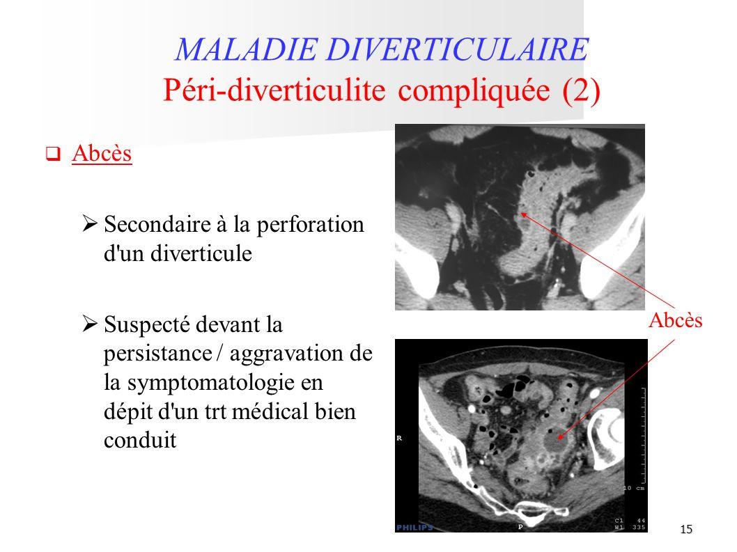 15 Abcès MALADIE DIVERTICULAIRE Péri-diverticulite compliquée (2) Abcès Secondaire à la perforation d'un diverticule Suspecté devant la persistance /