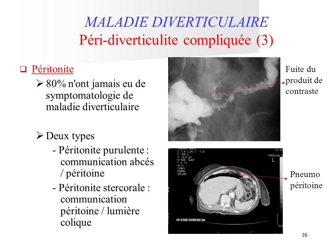 16 MALADIE DIVERTICULAIRE Péri-diverticulite compliquée (3) Péritonite 80% n'ont jamais eu de symptomatologie de maladie diverticulaire Deux types - P