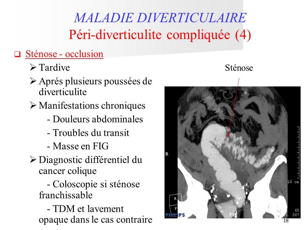 18 MALADIE DIVERTICULAIRE Péri-diverticulite compliquée (4) Sténose - occlusion Tardive Aprés plusieurs poussées de diverticulite Manifestations chron