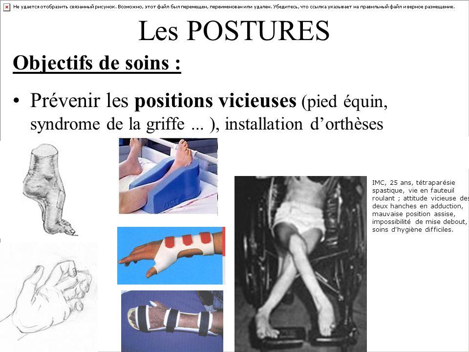 Les POSTURES Objectifs de soins : Prévenir les positions vicieuses (pied équin, syndrome de la griffe... ), installation dorthèses IMC, 25 ans, tétrap