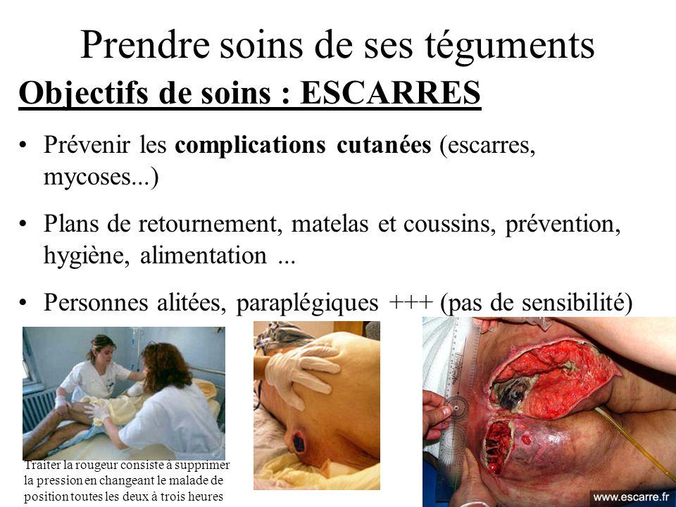 Prendre soins de ses téguments Objectifs de soins : ESCARRES Prévenir les complications cutanées (escarres, mycoses...) Plans de retournement, matelas