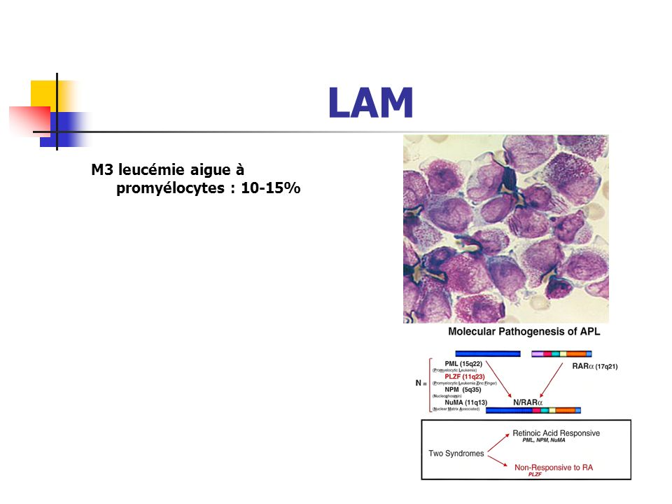 LAM M2: LAM avec maturation 30 - 40% ~ 15% with t(8:21)