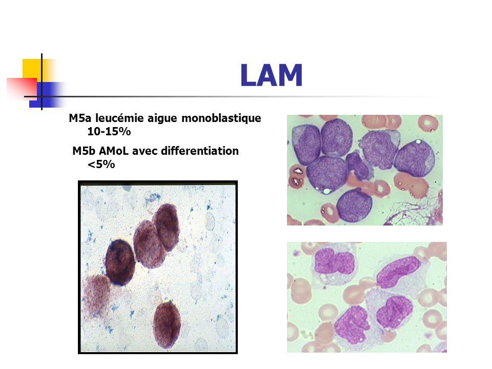 LAM M4 leucémie aigue myélomonocytaire 10- 15%