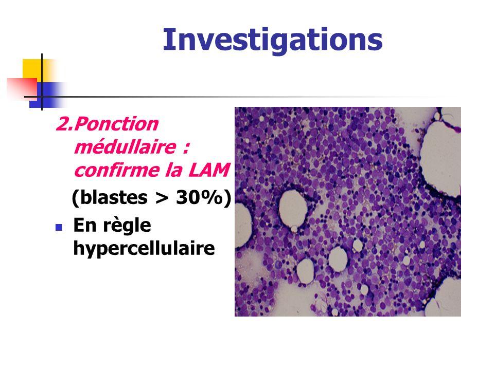 Investigations LAL(Lymphoblast es) Petites cellules Cytoplasme: rare Chromatine: Dense Nucleole :Indistinct Auer-rods: jamais LAM (Myéloblaste) grande