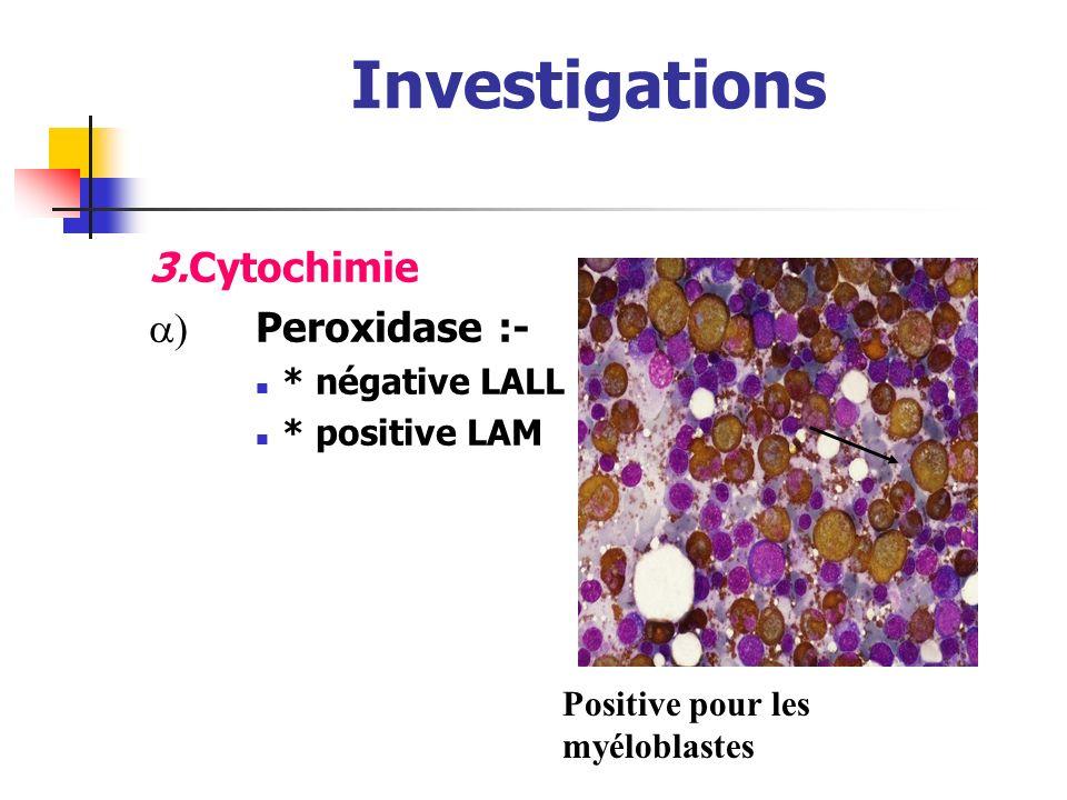 Investigations 2.Ponction médullaire : confirme la LAM (blastes > 30%) En règle hypercellulaire