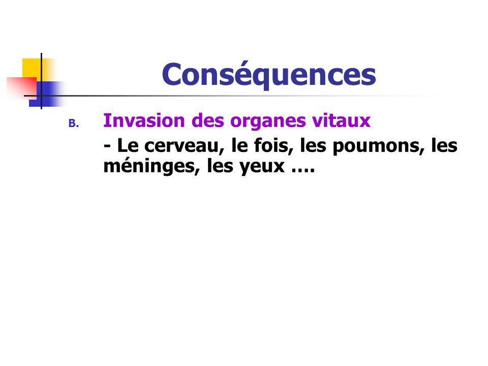 Conséquences ii. Hémorragies -Due à la thrombopénie iii. Anémie -Due à une érythropoièse inéfficace