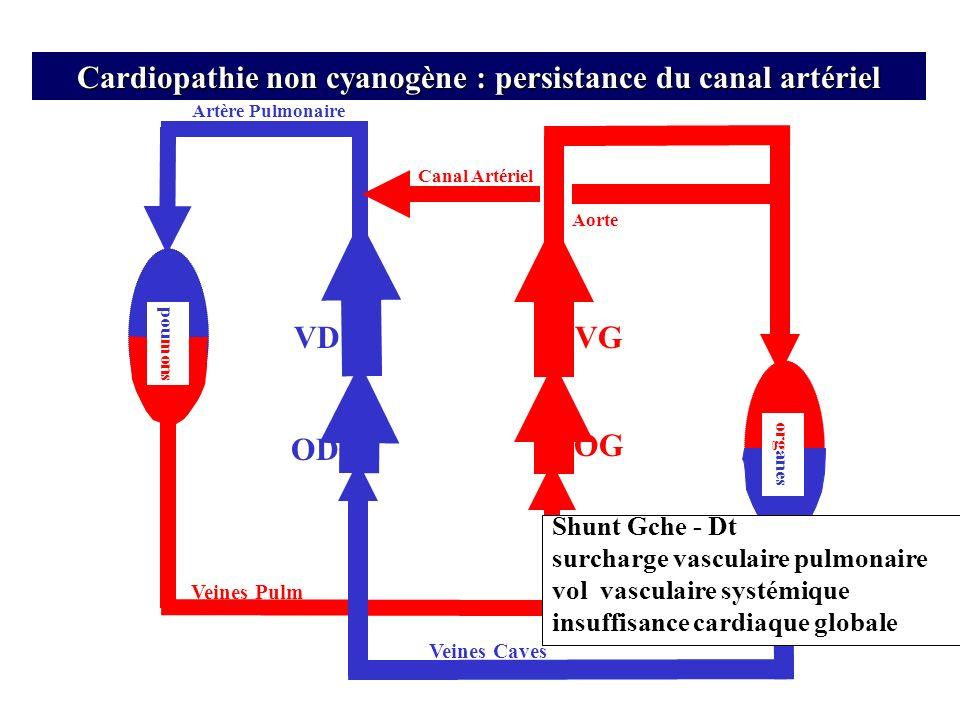 Artère Pulmonaire VD OD Veines Pulm Veines Caves OG Aorte org anes VG pou mons Cardiopathie non cyanogène : persistance du canal artériel Canal Artéri