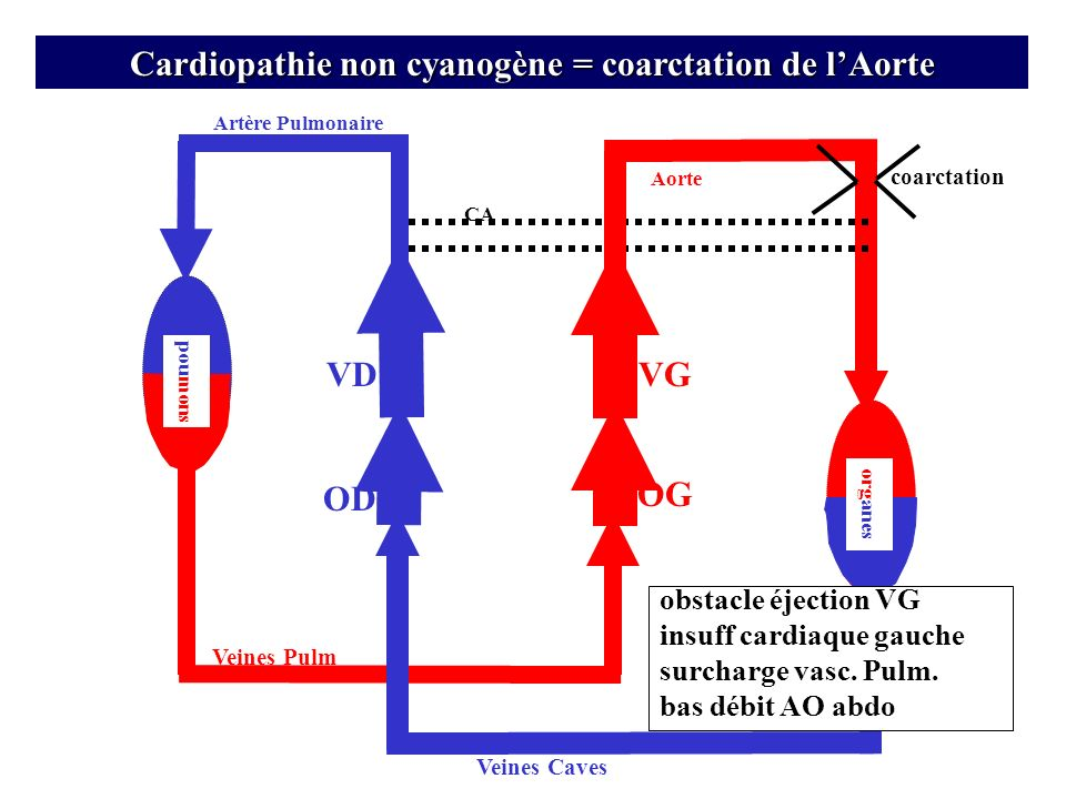 Artère Pulmonaire VD OD Veines Pulm Veines Caves OG CA org anes VG pou mons Cardiopathie non cyanogène = coarctation de lAorte Aorte coarctation obsta