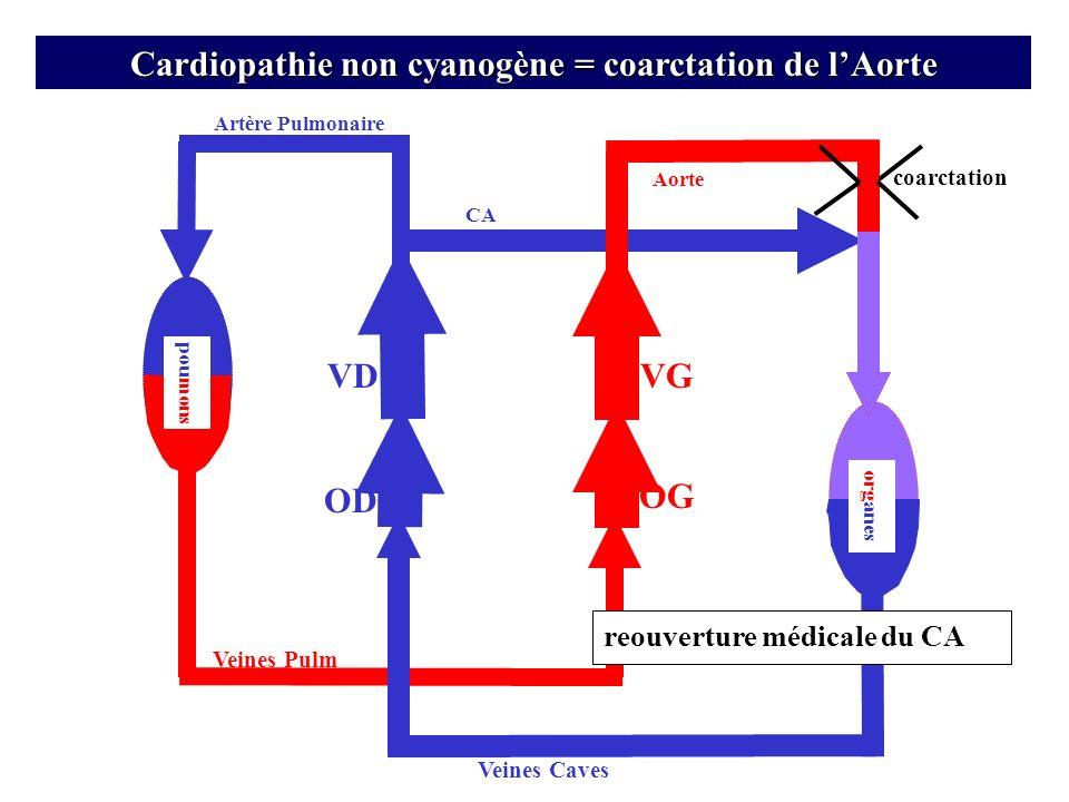 Artère Pulmonaire VD OD Veines Pulm Veines Caves OG CA org anes VG pou mons Cardiopathie non cyanogène = coarctation de lAorte Aorte coarctation reouv