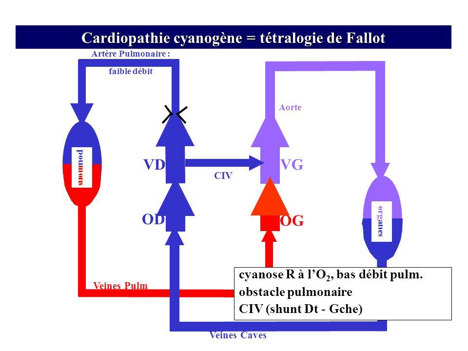 Artère Pulmonaire : faible débit VD OD Veines Pulm Veines Caves OG Aorte org anes VG pou mons Cardiopathie cyanogène = tétralogie de Fallot CIV cyanos