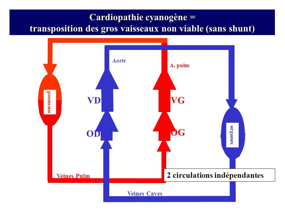 VD OD Veines Pulm Veines Caves OG A. pulm organes VG poumons Cardiopathie cyanogène = transposition des gros vaisseaux non viable (sans shunt) Aorte 2