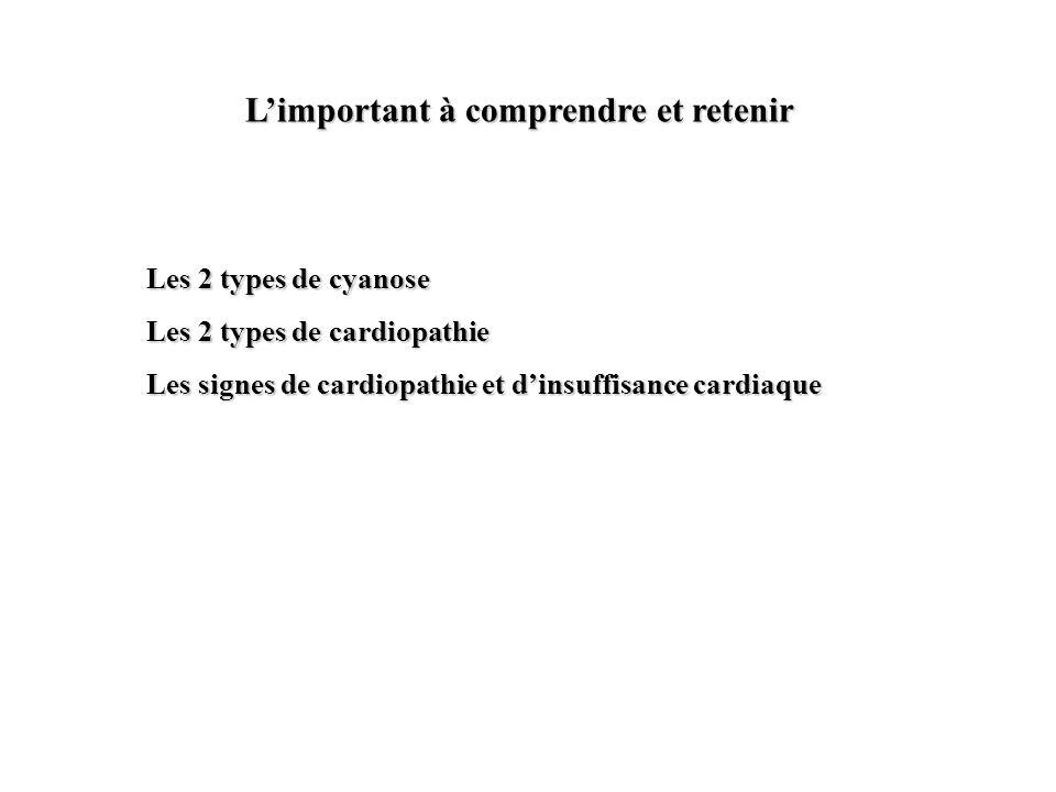 Limportant à comprendre et retenir Les 2 types de cyanose Les 2 types de cardiopathie Les signes de cardiopathie et dinsuffisance cardiaque