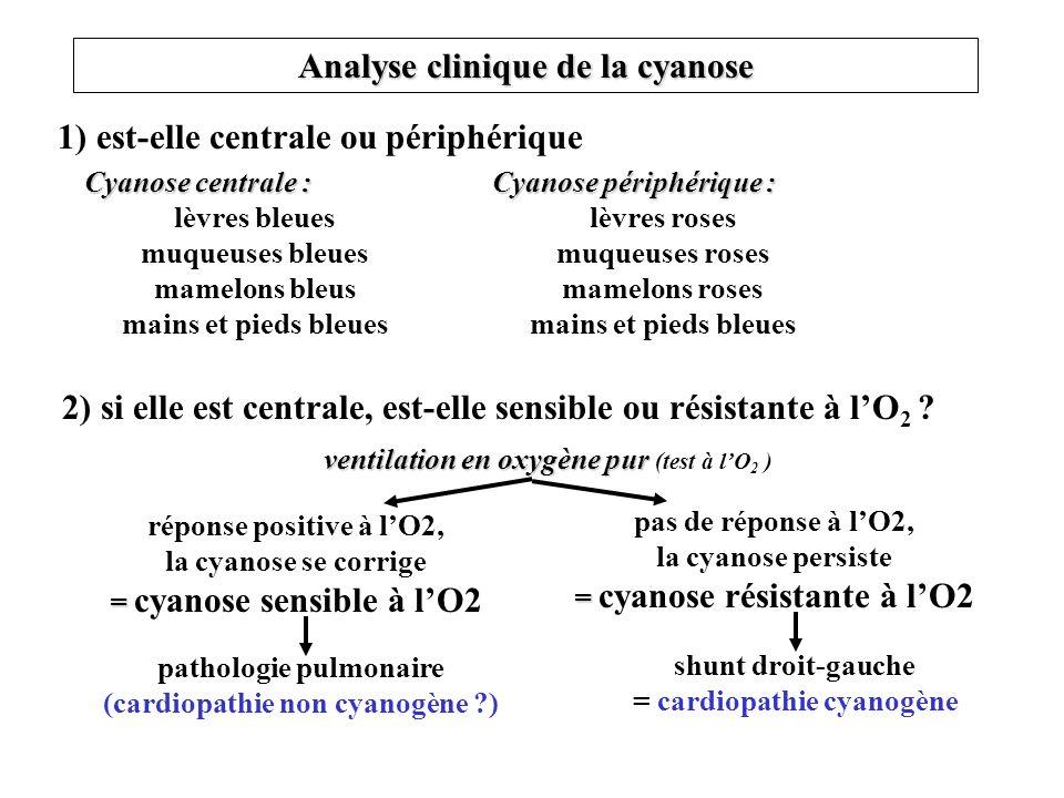 Analyse clinique de la cyanose 1) est-elle centrale ou périphérique Cyanose centrale : lèvres bleues muqueuses bleues mamelons bleus mains et pieds bl