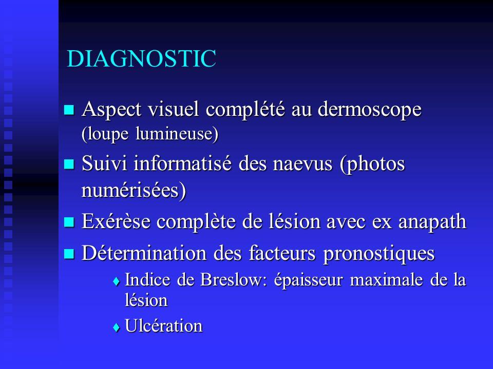 DIAGNOSTIC Aspect visuel complété au dermoscope (loupe lumineuse) Aspect visuel complété au dermoscope (loupe lumineuse) Suivi informatisé des naevus