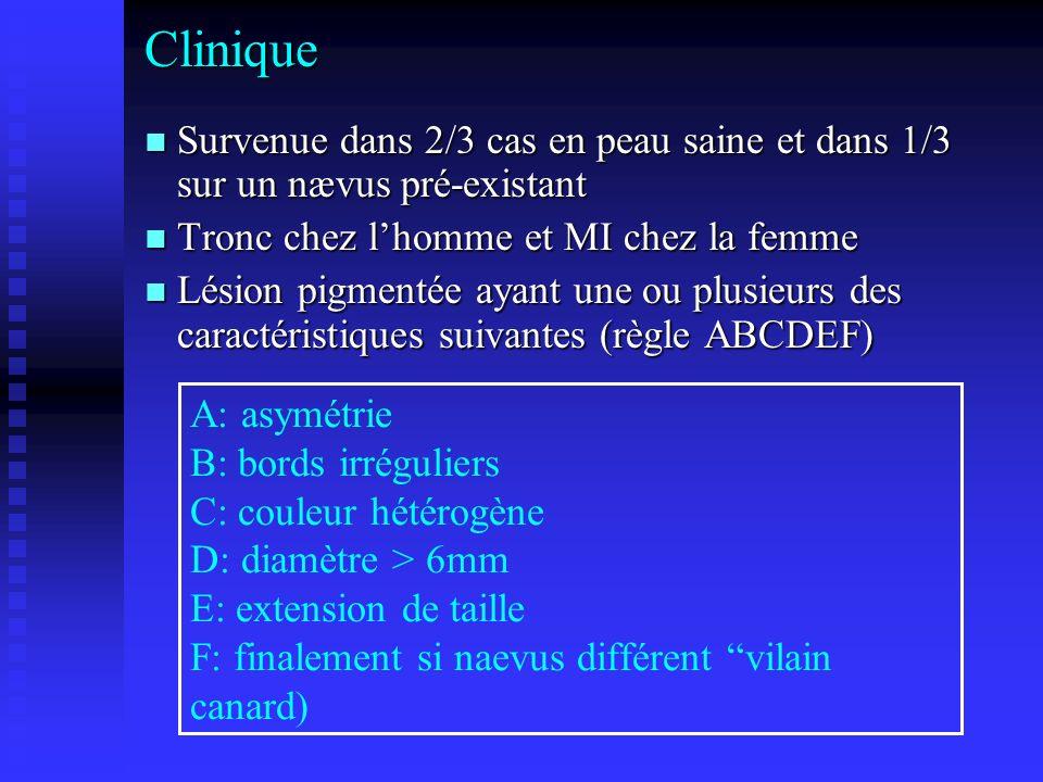 Clinique Survenue dans 2/3 cas en peau saine et dans 1/3 sur un nævus pré-existant Survenue dans 2/3 cas en peau saine et dans 1/3 sur un nævus pré-ex
