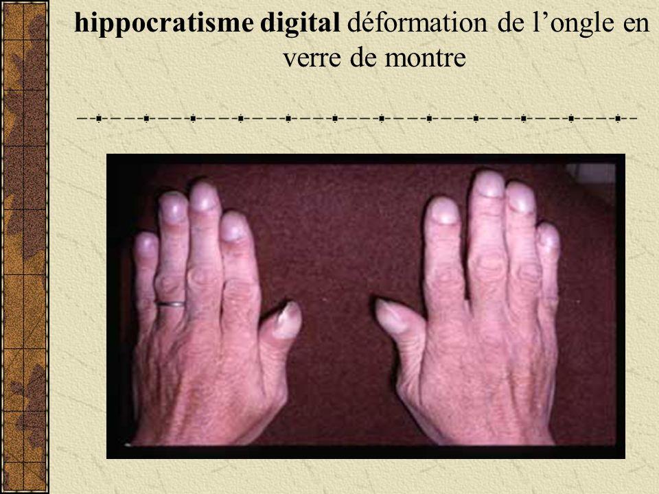 hippocratisme digital déformation de longle en verre de montre