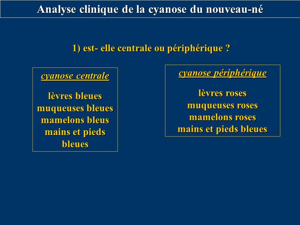Analyse clinique de la cyanose du nouveau-né cyanose centrale lèvres bleues muqueuses bleues mamelons bleus mains et pieds bleues cyanose périphérique