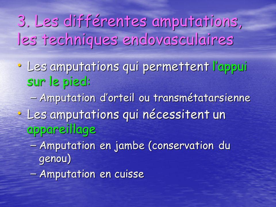 3. Les différentes amputations, les techniques endovasculaires Les amputations qui permettent lappui sur le pied: Les amputations qui permettent lappu
