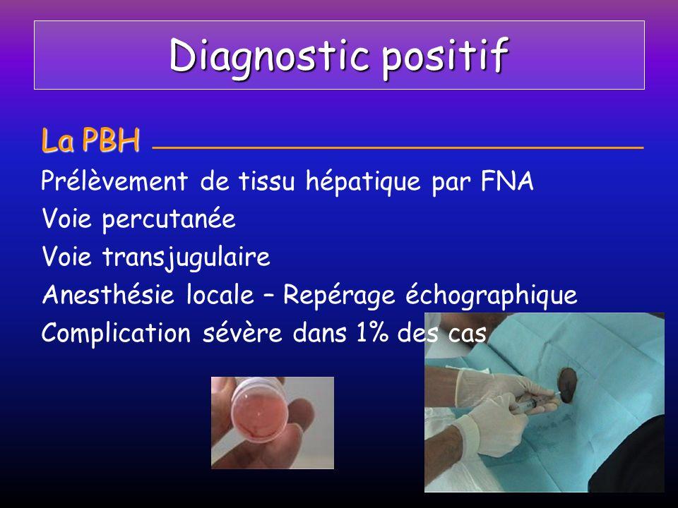 Hépatite B Transmission Par les sécrétions naturellesPar LE SANG Sexe et salive transfusion (diminué par le dosage des Ac des donneurs) Usage de drogues IV Hémodialyse, AES Materno-fœtale Transplantation dorgane et chirurgie lourde