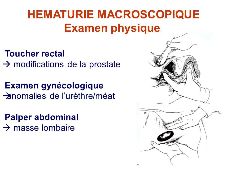 HEMATURIE MACROSCOPIQUE Examen physique Toucher rectal modifications de la prostate Examen gynécologique anomalies de lurèthre/méat Palper abdominal masse lombaire