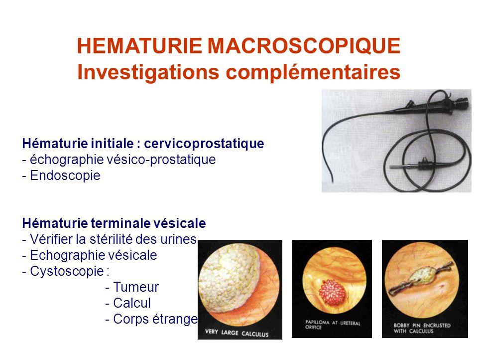 HEMATURIE MACROSCOPIQUE Investigations complémentaires Hématurie initiale : cervicoprostatique - échographie vésico-prostatique - Endoscopie Hématurie