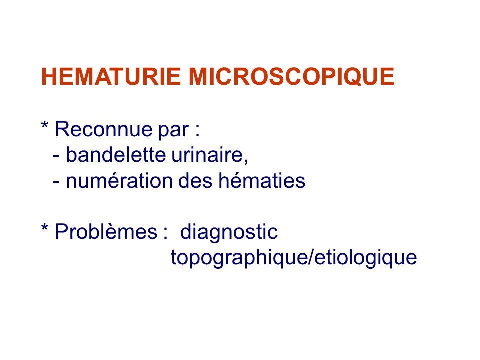 HEMATURIE MICROSCOPIQUE * Reconnue par : - bandelette urinaire, - numération des hématies * Problèmes : diagnostic topographique/etiologique