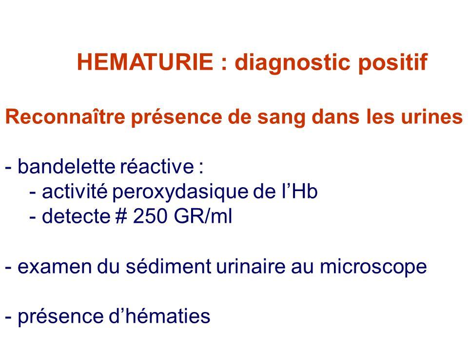 HEMATURIE : diagnostic positif Reconnaître présence de sang dans les urines - bandelette réactive : - activité peroxydasique de lHb - detecte # 250 GR/ml - examen du sédiment urinaire au microscope - présence dhématies