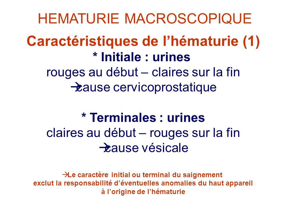 Caractéristiques de lhématurie (1) * Initiale : urines rouges au début – claires sur la fin cause cervicoprostatique * Terminales : urines claires au